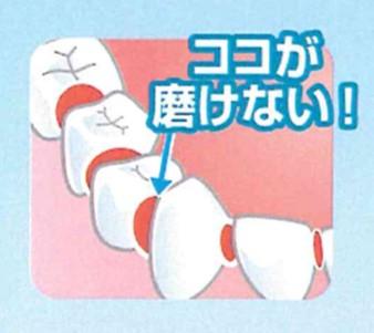歯ブラシだけでは限界